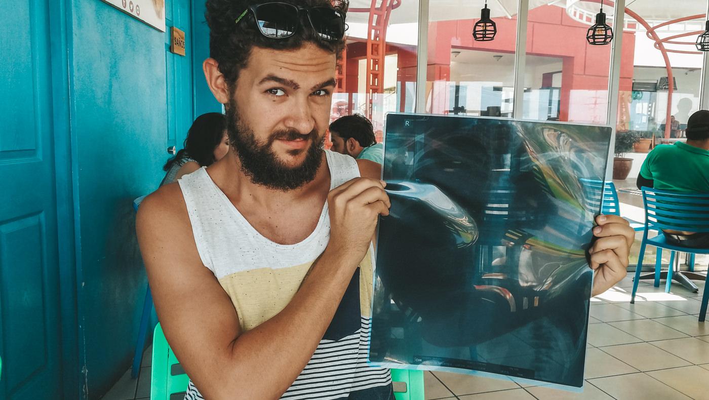 Matthias und sein Röntgenbild